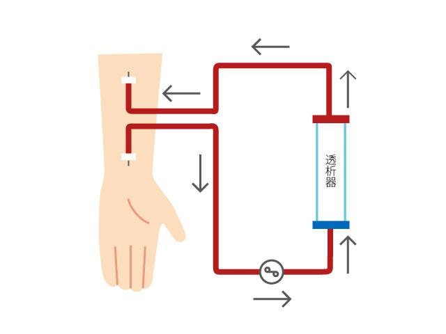 人工透析イメージ図